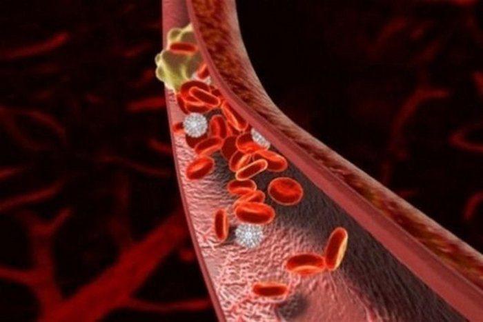 почечное кровотечение симптомы